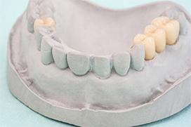 Zahnersatz Zahnarzt Leverkusen Schlebusch