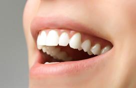 Aufhellung Bleaching Zahnarzt Leverkusen