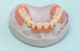 Zahnarzt für Zahnimplantate in Leverkusen